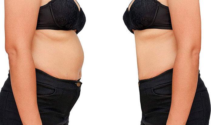 Czy odsysanie tłuszczu jest bezpieczne